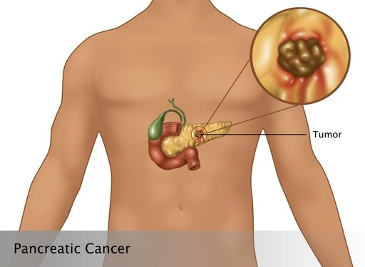 Pancreatic Cancer in Male Figure Illustration Poster Print by Gwen ShockeyScience Source (24 x 18) d2da7ada65846850865b48371662d63a
