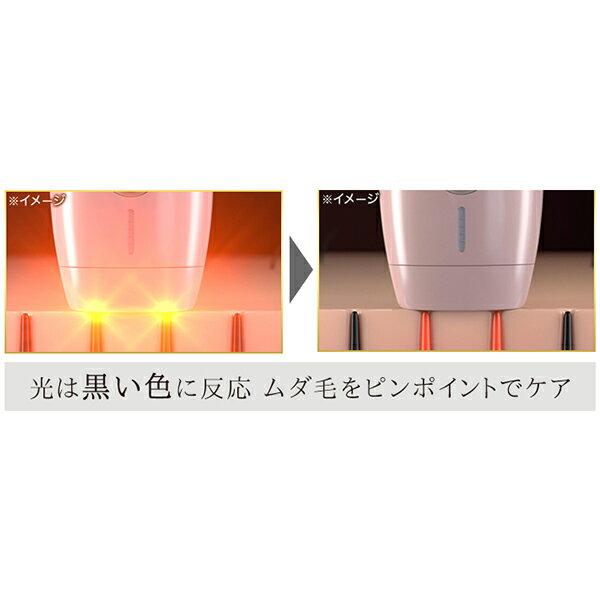 日本TBS電視台強力推薦  /  ME 專業光學除毛機 脫毛機 。(20014)日本必買 日本樂天代購。滿額免運 3