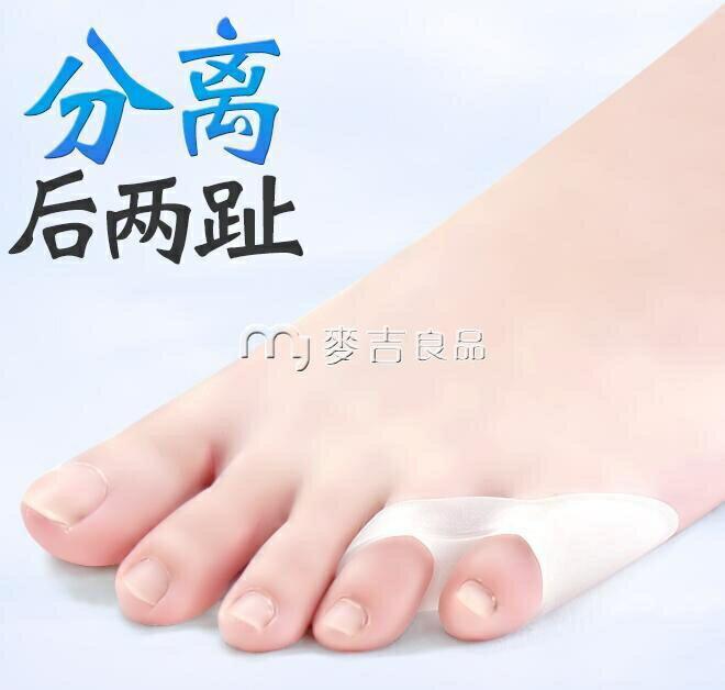 分趾器內翻小拇指外翻矯正拇外翻重疊趾分離