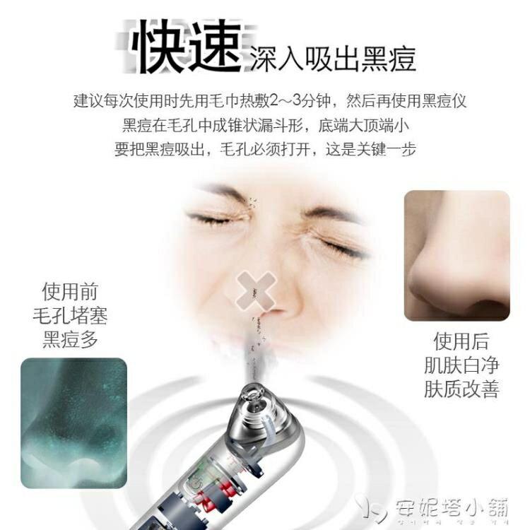 寶島夯貨~吸黑頭神器電動吸去毛孔清潔機小氣泡鏟粉刺潔面洗臉儀器美容男女
