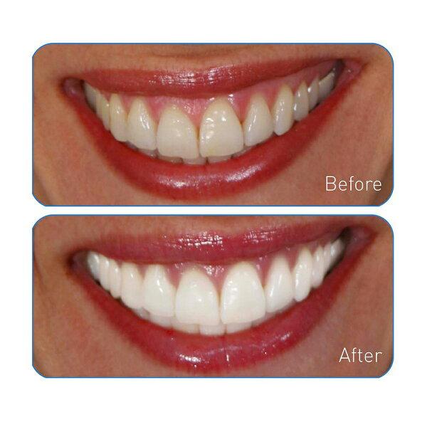 Go Smile Professional On The Go Advanced Teeth Whitening Pen