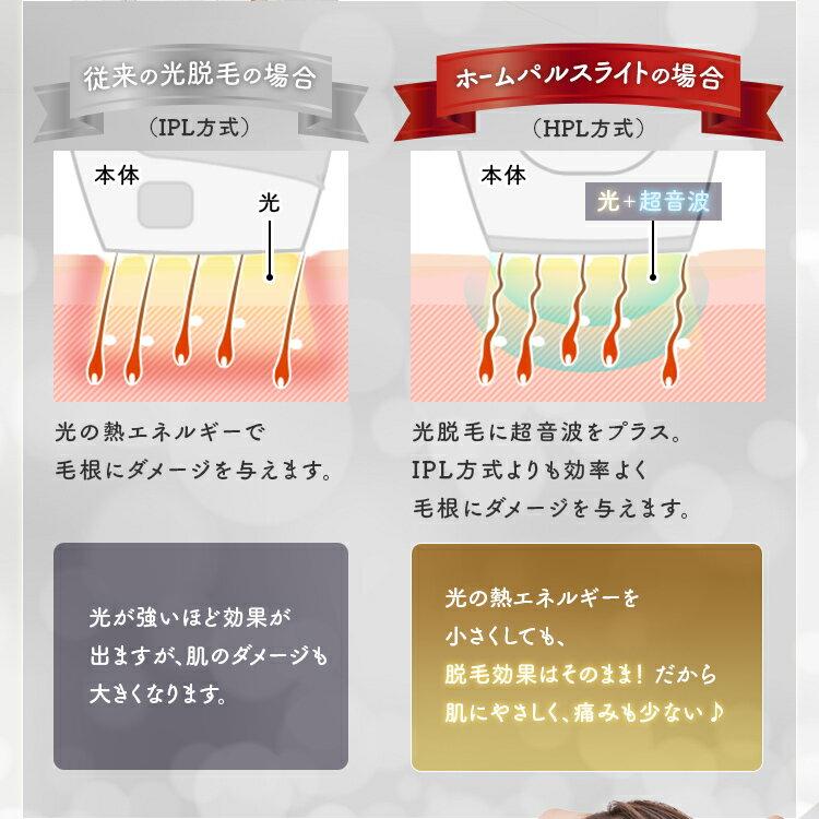日本Iris Ohyama  /  樂天熱銷款 光學+超音波 除毛機 脫毛機  / EP-0440-W。(19800)日本必買 日本樂天代購。滿額免運 6