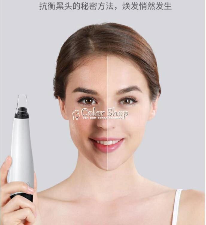 樂天優選-吸黑頭神器電動吸去毛孔粉刺清潔小氣泡鏟洗臉儀吸出器潔面美容儀 快速出貨
