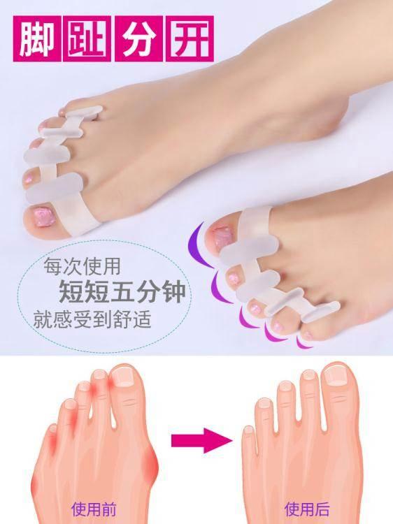 分趾器 足峰硅膠拇指外翻分指器大腳骨小腳趾外翻矯正器成人分趾器可穿鞋