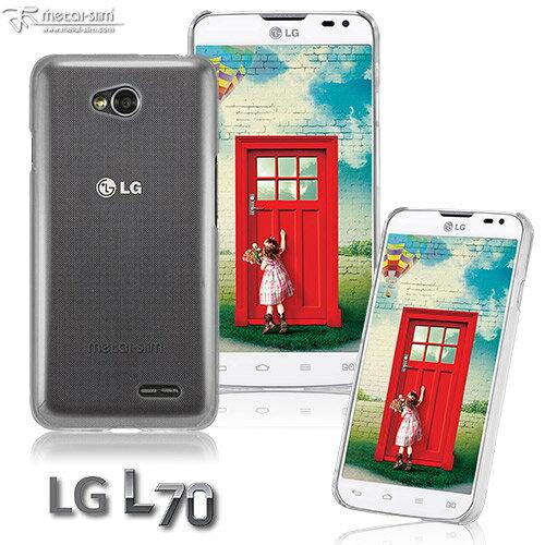 UNIPRO【LG09】Metal-Slim LG L Series III (L70) PC透明 新型保護殼 手機套