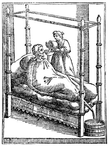 Patient And Nurse 1646 Na Patient In A Balloon-Like Bag Designed To Reduce Fevers Woodcut 1646 Poster Print by (18 x 24) b9add408a8314c4a491c25ced754bfca