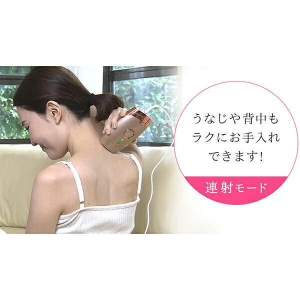日本TBS電視台強力推薦  /  ME 專業光學除毛機 脫毛機 。(20014)日本必買 日本樂天代購。滿額免運 2