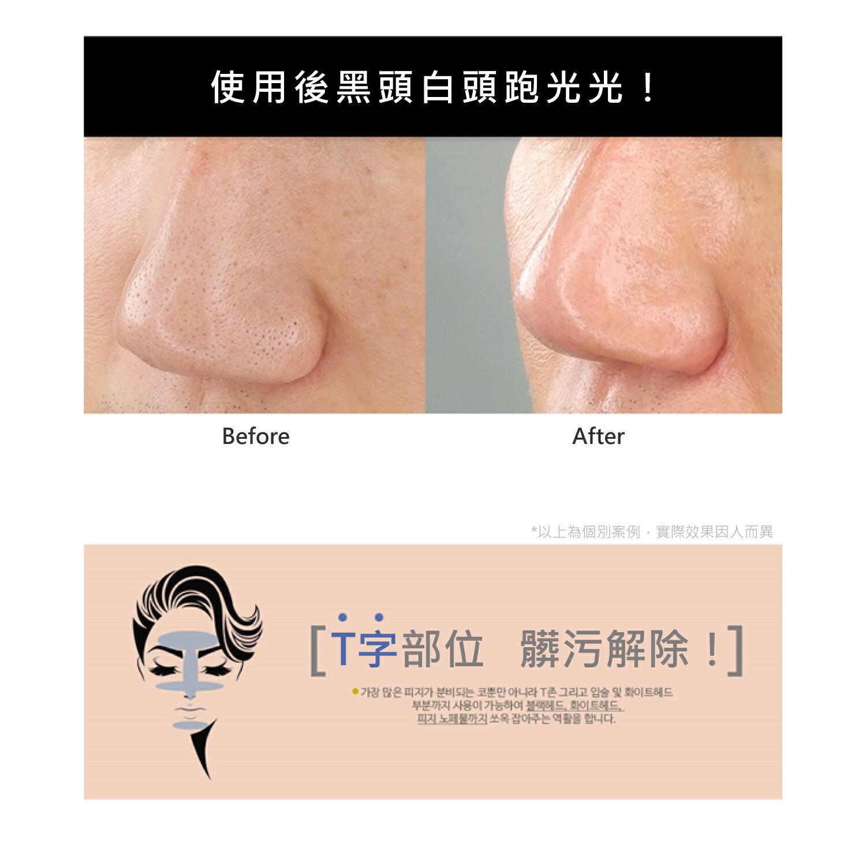 【韓國原裝】黑白雙殺調理毛孔粉刺棒(15g) 2