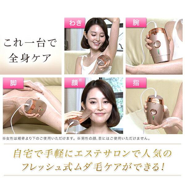 日本TBS電視台強力推薦  /  ME 專業光學除毛機 脫毛機 。(20014)日本必買 日本樂天代購。滿額免運 5